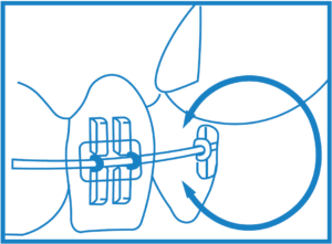 rapid palatal expander instructions
